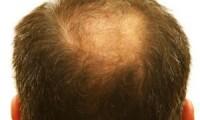 知って備える!薄毛治療の種類とタイミング